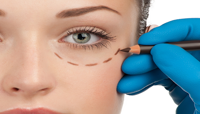Eyelid Surgery In Los Angeles - Cosmetic Eyelid Surgery - Blepharoplasty