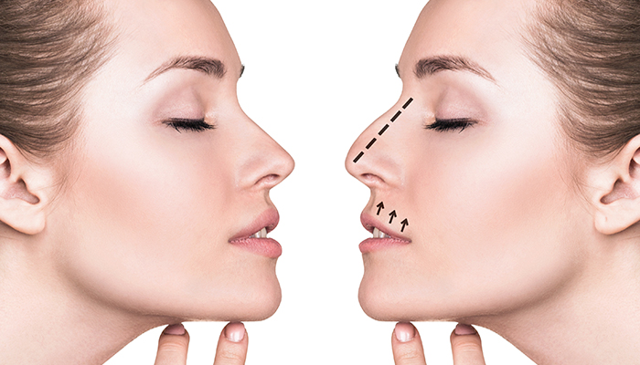 Rhinoplasty Los Angeles - Nose Surgery - Rhinoplasty Specialist