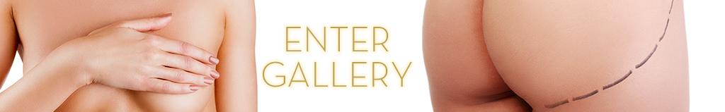 enter-gallery