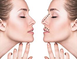 Rhinoplasty (Nose Jobs)