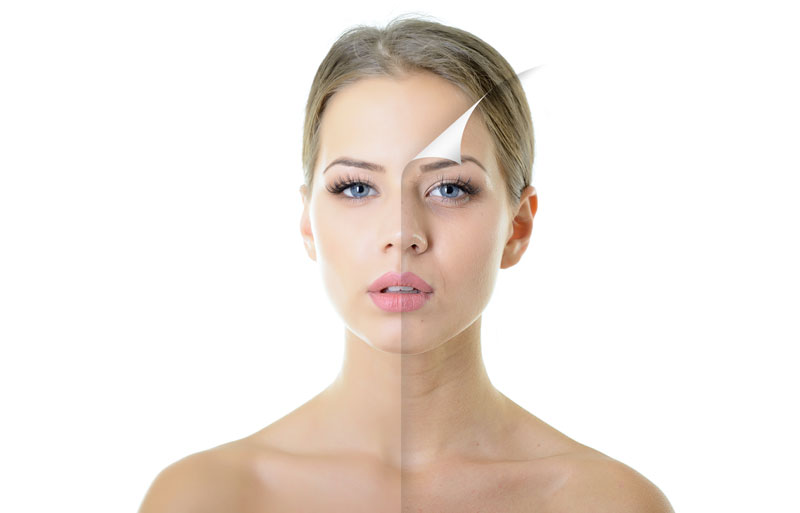 Common Types of Rhinoplasty