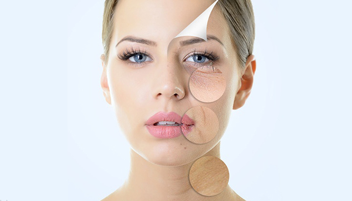 Wrinkle Reduction Treatment - A New Revolutionary Procedures